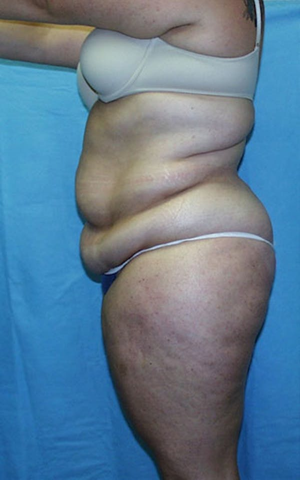 Tummy Tuck Gallery - Patient 23533882 - Image 3