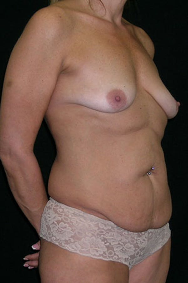 Mommy Makeover Gallery - Patient 23533879 - Image 9