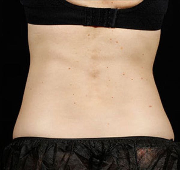 SculpSure Gallery - Patient 23533880 - Image 2