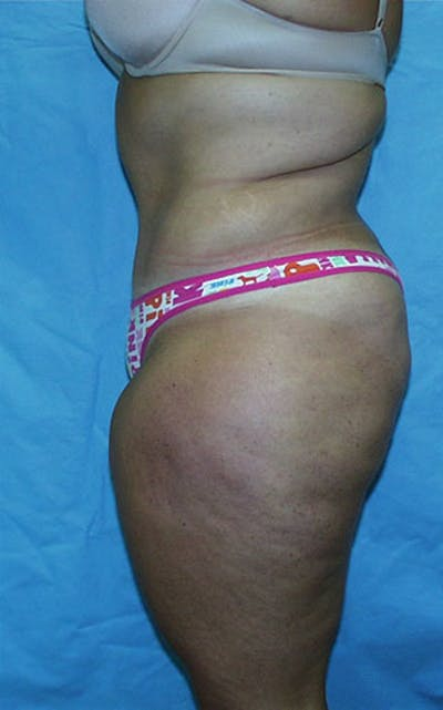 Tummy Tuck Gallery - Patient 23533882 - Image 4