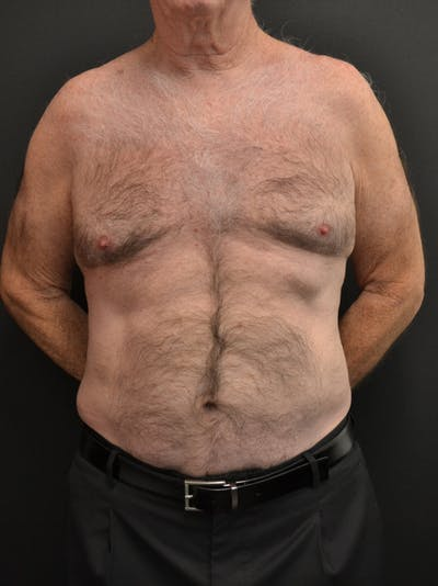 Liposuction & SmartLipo Gallery - Patient 23533888 - Image 2