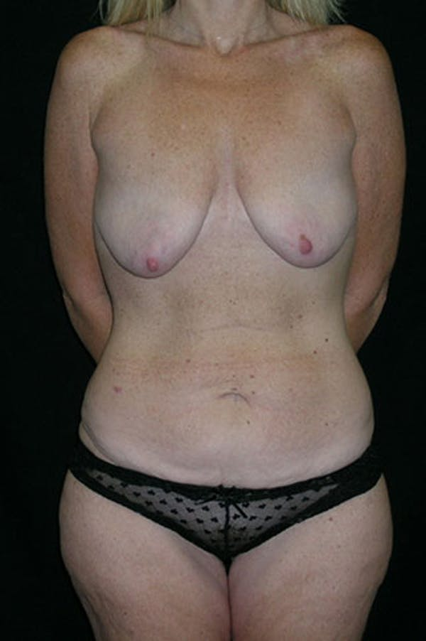 Mommy Makeover Gallery - Patient 23533890 - Image 1
