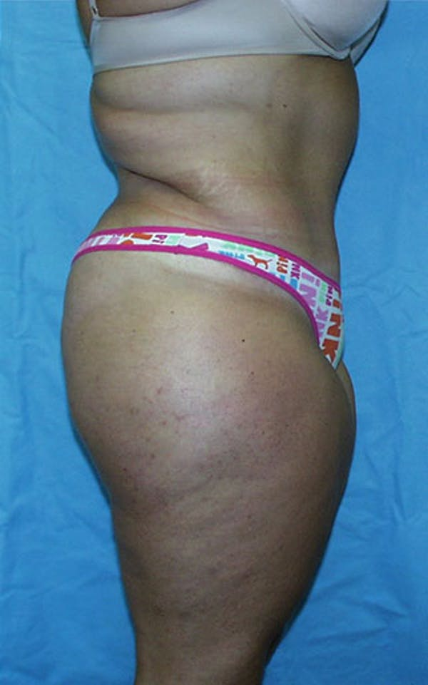 Tummy Tuck Gallery - Patient 23533882 - Image 6