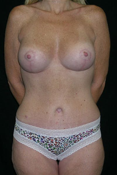 Mommy Makeover Gallery - Patient 23533890 - Image 2