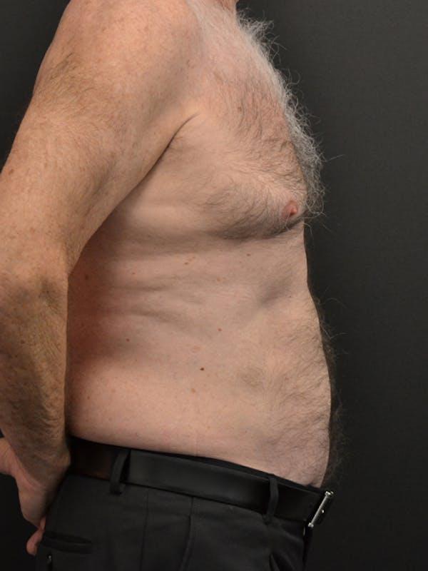 Liposuction & SmartLipo Gallery - Patient 23533888 - Image 4