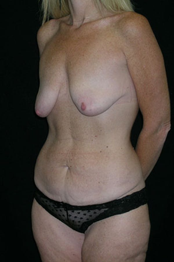 Mommy Makeover Gallery - Patient 23533890 - Image 3