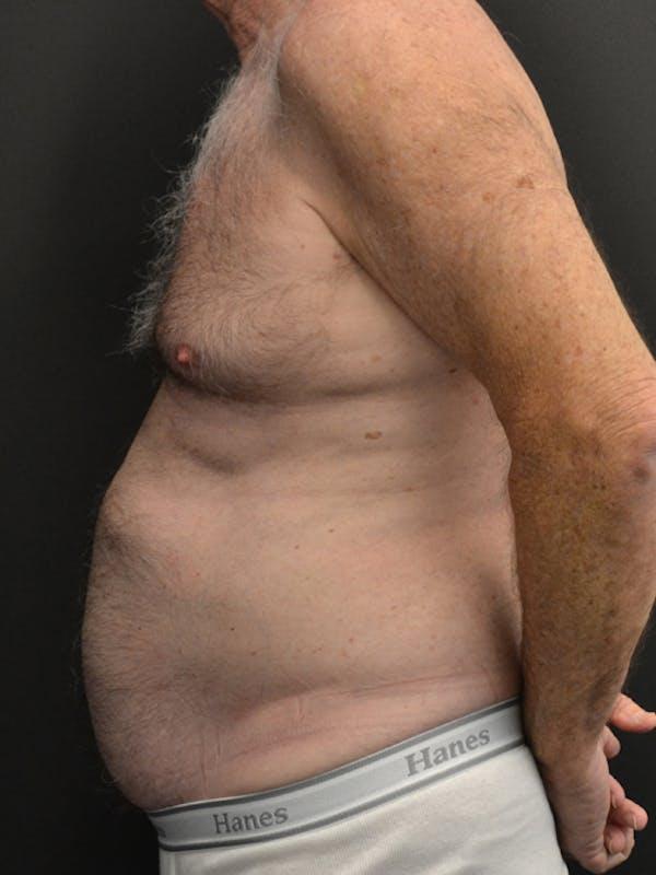 Liposuction & SmartLipo Gallery - Patient 23533888 - Image 5