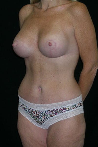 Mommy Makeover Gallery - Patient 23533890 - Image 4