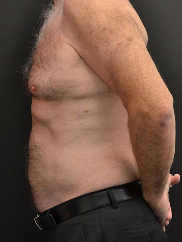 Liposuction & SmartLipo Gallery - Patient 23533888 - Image 6