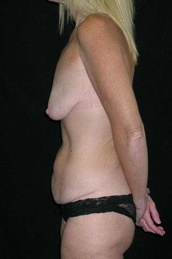 Mommy Makeover Gallery - Patient 23533890 - Image 5