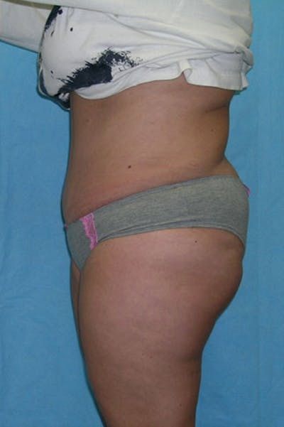 Tummy Tuck Gallery - Patient 23533889 - Image 4