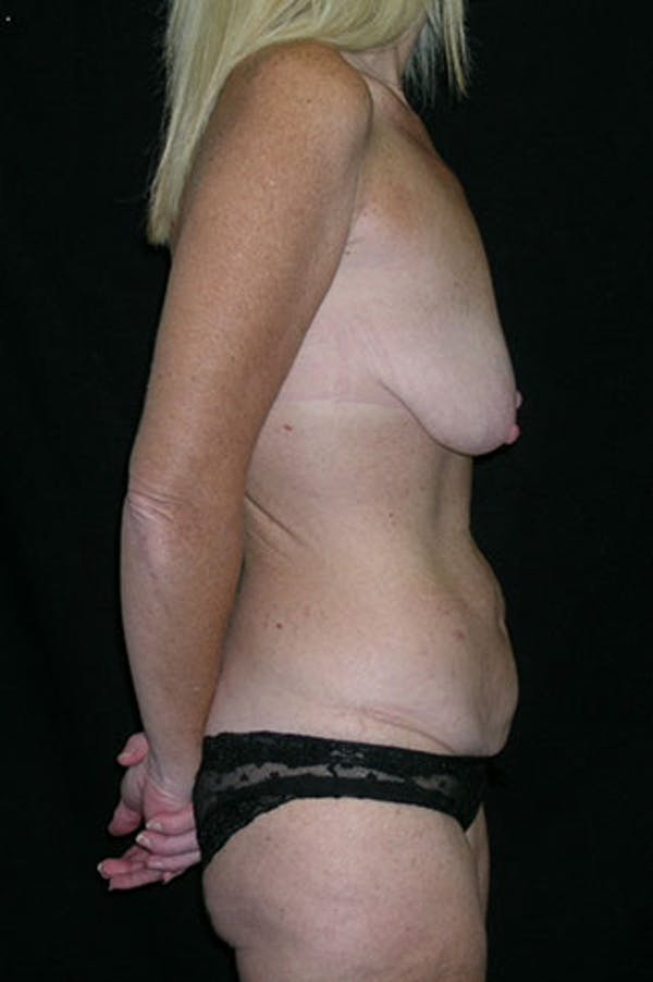 Mommy Makeover Gallery - Patient 23533890 - Image 7