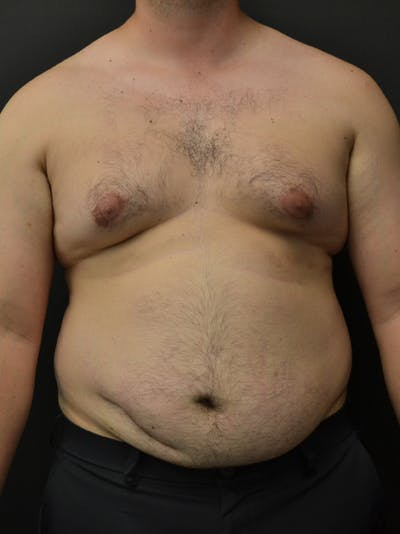 Liposuction & SmartLipo Gallery - Patient 23533892 - Image 1