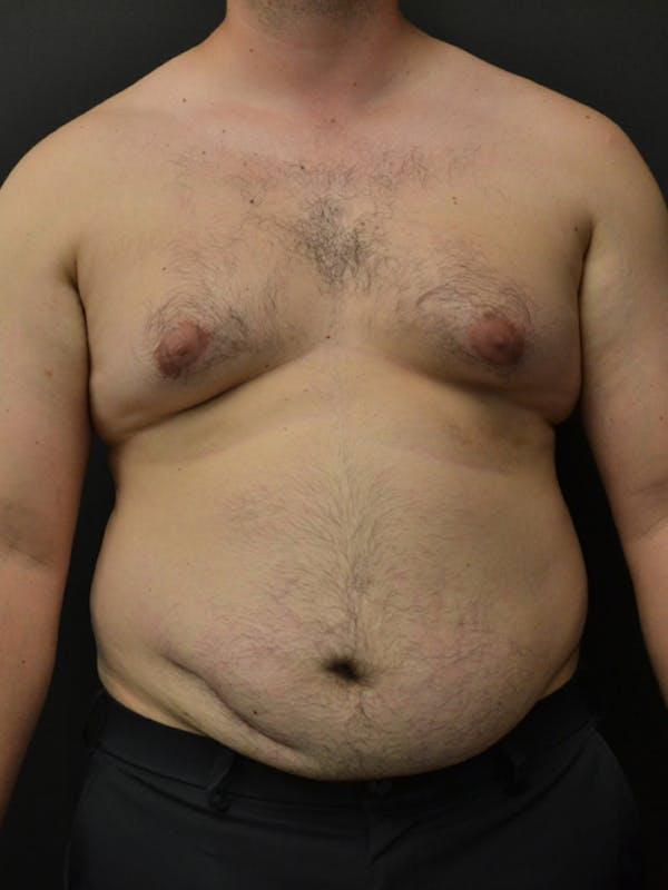 Liposuction & SmartLipo Gallery - Patient 23533892 - Image 1