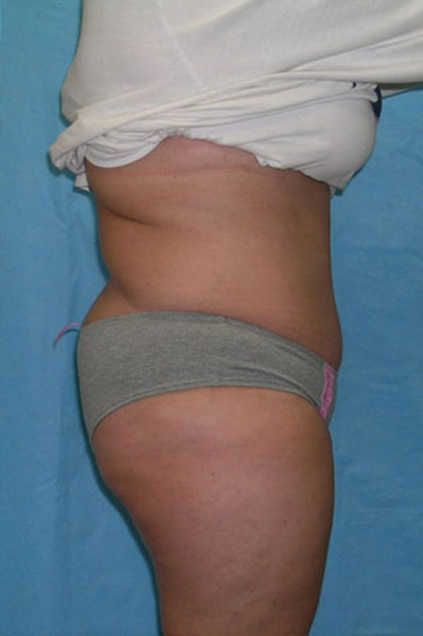 Tummy Tuck Gallery - Patient 23533889 - Image 6