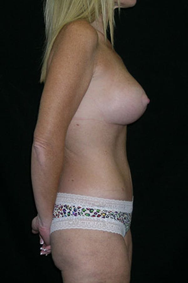 Mommy Makeover Gallery - Patient 23533890 - Image 8