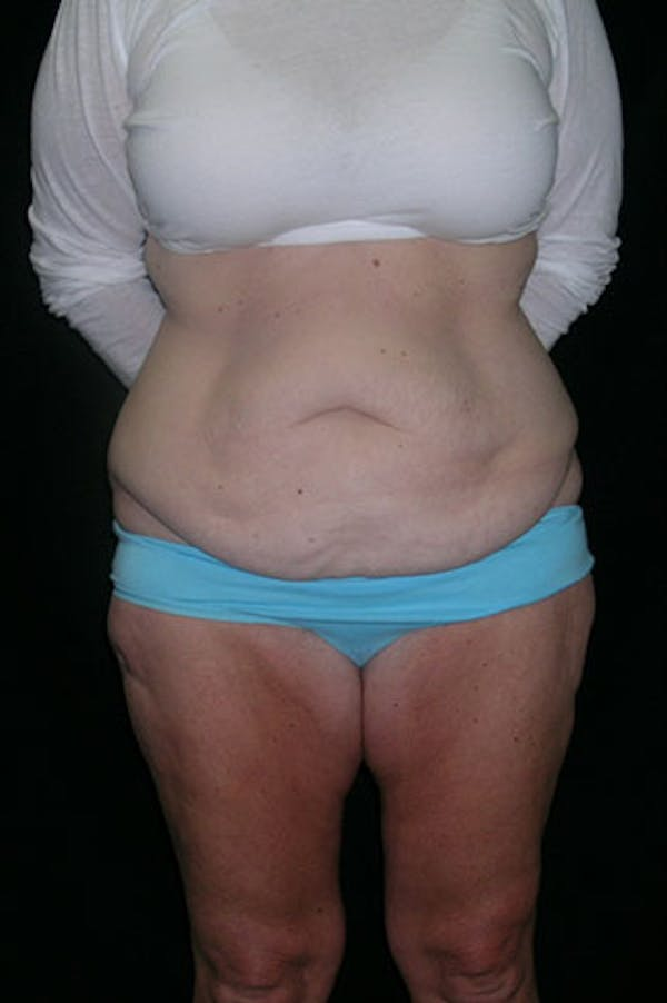 Tummy Tuck Gallery - Patient 23533893 - Image 1