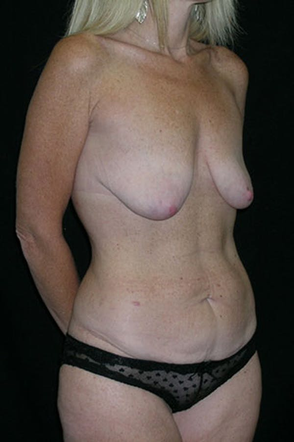 Mommy Makeover Gallery - Patient 23533890 - Image 9