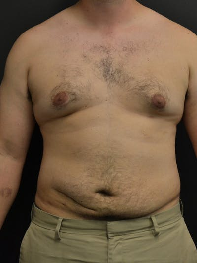 Liposuction & SmartLipo Gallery - Patient 23533892 - Image 2