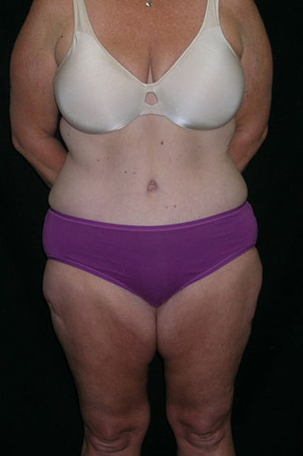 Tummy Tuck Gallery - Patient 23533893 - Image 2