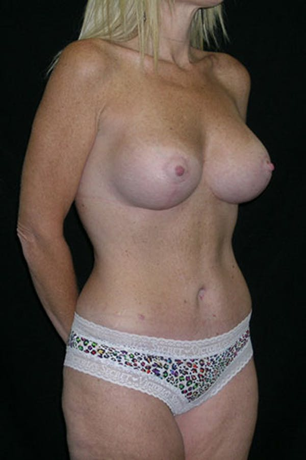 Mommy Makeover Gallery - Patient 23533890 - Image 10