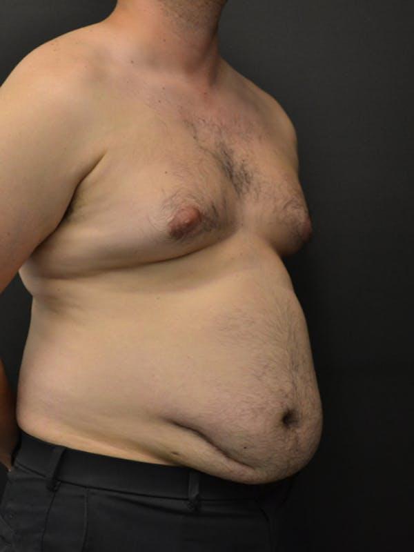 Liposuction & SmartLipo Gallery - Patient 23533892 - Image 3