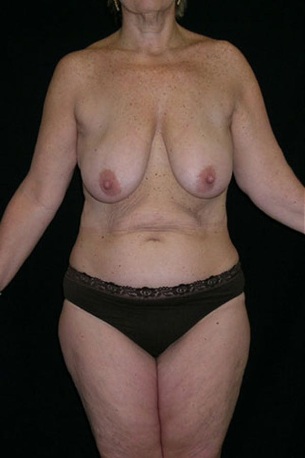 Mommy Makeover Gallery - Patient 23533904 - Image 1