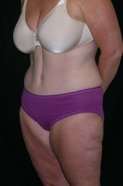 Tummy Tuck Gallery - Patient 23533893 - Image 4
