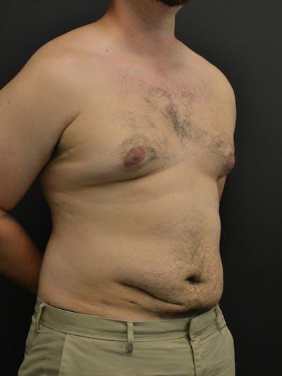 Liposuction & SmartLipo Gallery - Patient 23533892 - Image 4