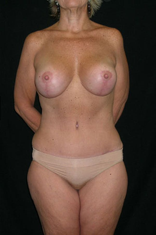 Mommy Makeover Gallery - Patient 23533904 - Image 2
