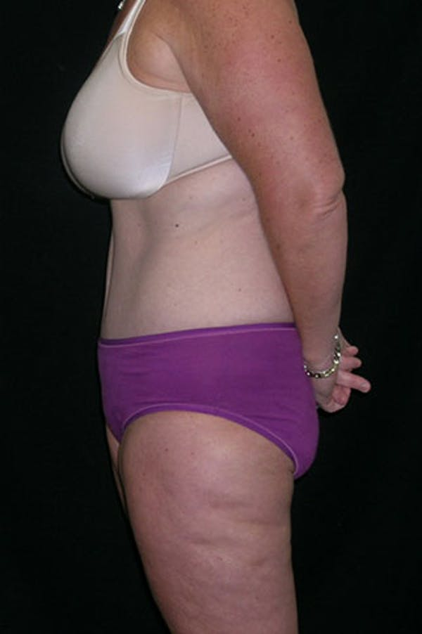 Tummy Tuck Gallery - Patient 23533893 - Image 6