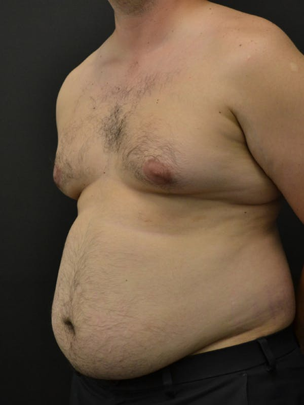 Liposuction & SmartLipo Gallery - Patient 23533892 - Image 5