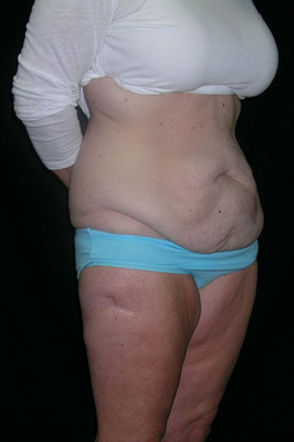 Tummy Tuck Gallery - Patient 23533893 - Image 7