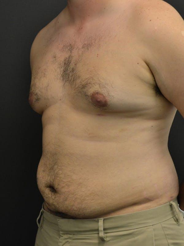 Liposuction & SmartLipo Gallery - Patient 23533892 - Image 6