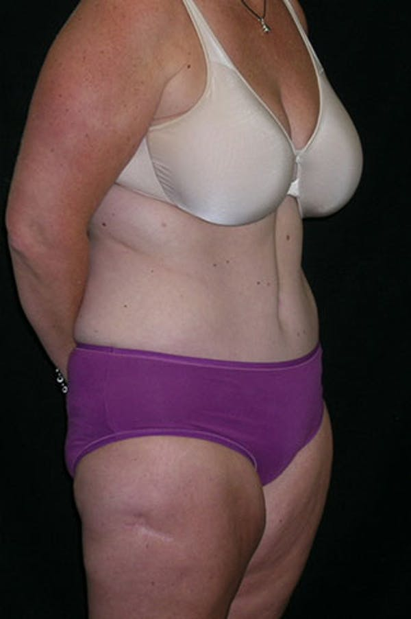 Tummy Tuck Gallery - Patient 23533893 - Image 8