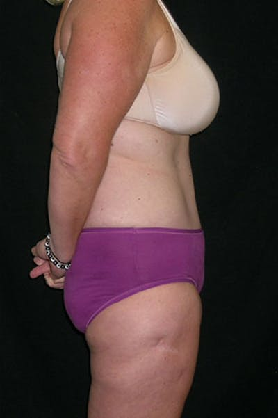 Tummy Tuck Gallery - Patient 23533893 - Image 10