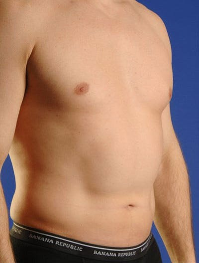 Liposuction & SmartLipo Gallery - Patient 23533897 - Image 1