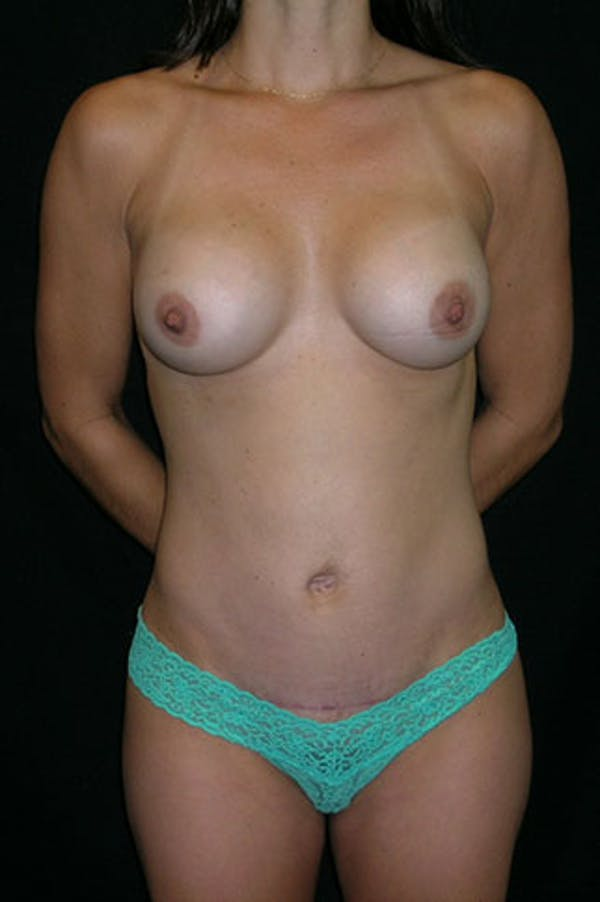 Tummy Tuck Gallery - Patient 23533899 - Image 2