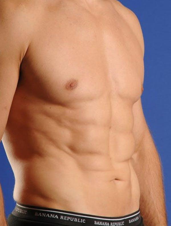 Liposuction & SmartLipo Gallery - Patient 23533897 - Image 2