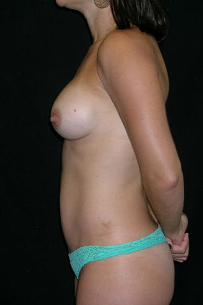 Tummy Tuck Gallery - Patient 23533899 - Image 4