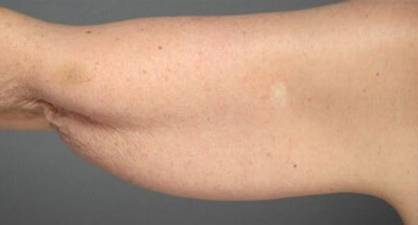 Liposuction & SmartLipo Gallery - Patient 23533898 - Image 1