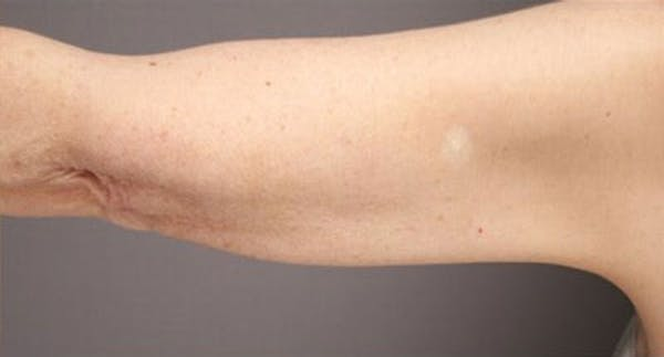 Liposuction & SmartLipo Gallery - Patient 23533898 - Image 2
