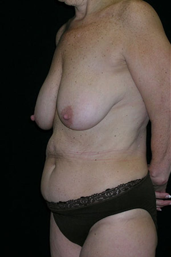 Mommy Makeover Gallery - Patient 23533904 - Image 3