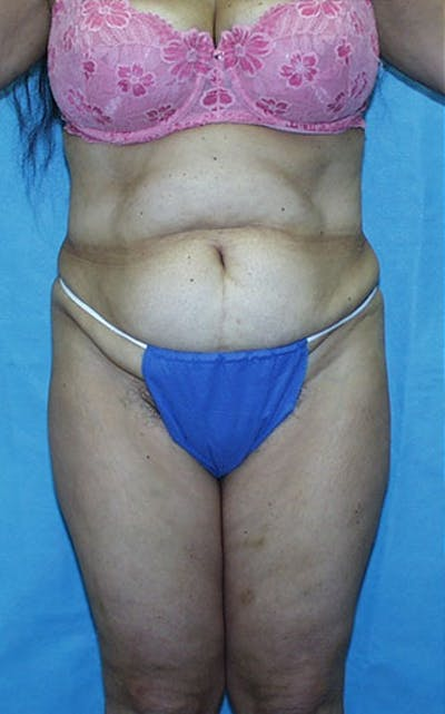 Tummy Tuck Gallery - Patient 23533903 - Image 1