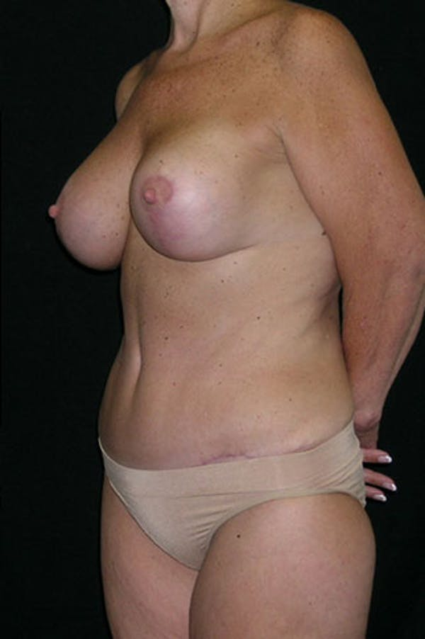 Mommy Makeover Gallery - Patient 23533904 - Image 4