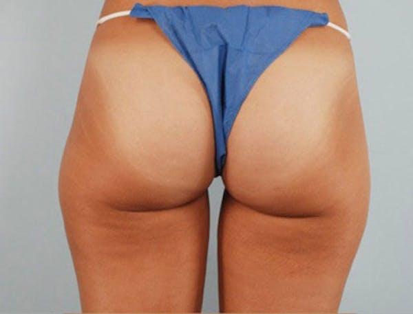 Liposuction & SmartLipo Gallery - Patient 23533900 - Image 2