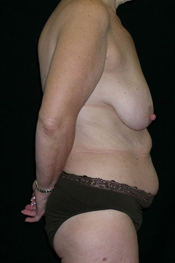 Mommy Makeover Gallery - Patient 23533904 - Image 5