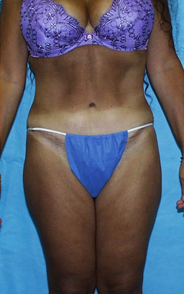 Tummy Tuck Gallery - Patient 23533903 - Image 2