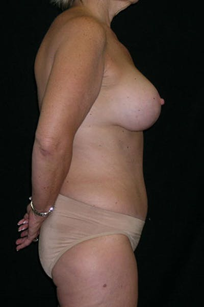 Mommy Makeover Gallery - Patient 23533904 - Image 6
