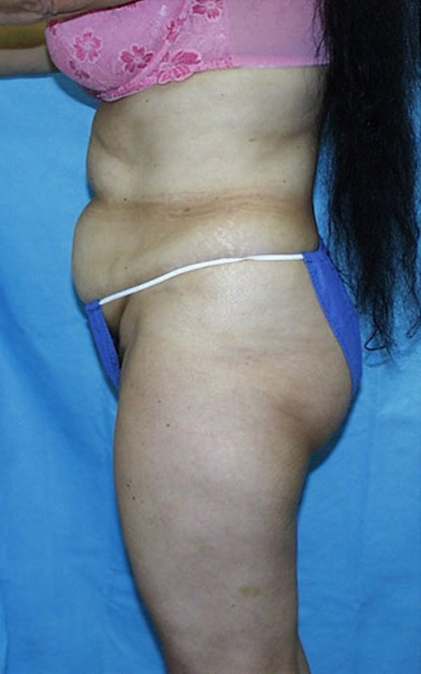 Tummy Tuck Gallery - Patient 23533903 - Image 3